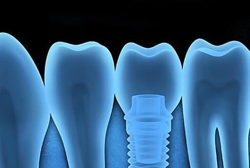 Aquí está lo que los nuevos implantes dentales deben costar