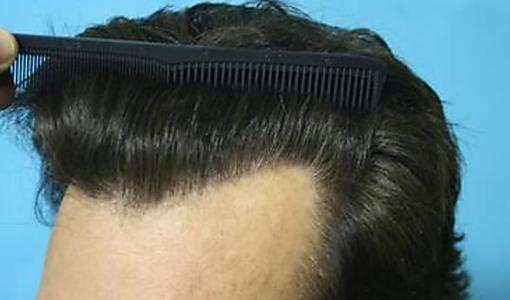 """Watch How He """"Regrow"""" His Hair Naturally  in 14 Days! Try Tonight"""