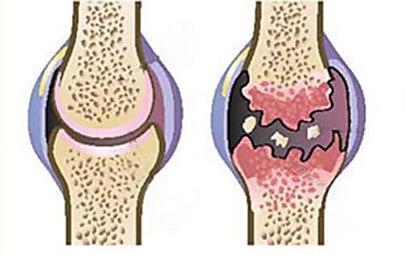 Elimina il dolore e rigenera rapidamente le ginocchia